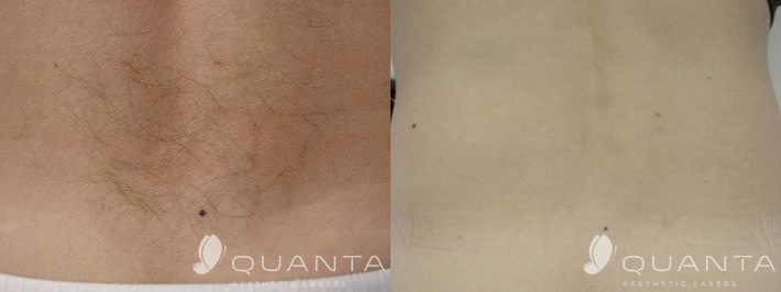 Copy-of-Hair-Removal-Back-IPL_Before_After