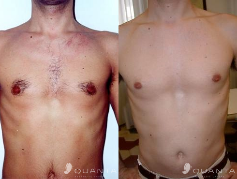 Hair-Removal-Chest-1064-Before_After