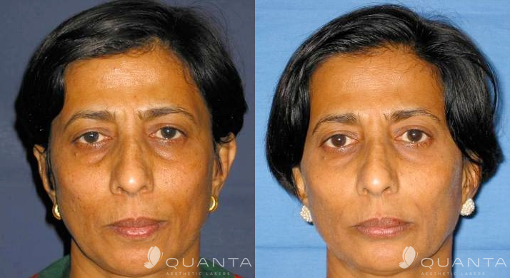 Wrinkles-Face-1-1064SP-Before_After