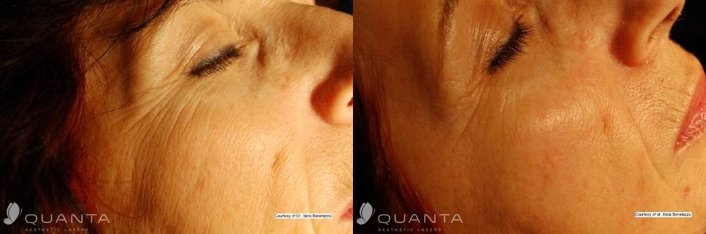 Wrinkles-Face-2-1064SP-Before_After (1)